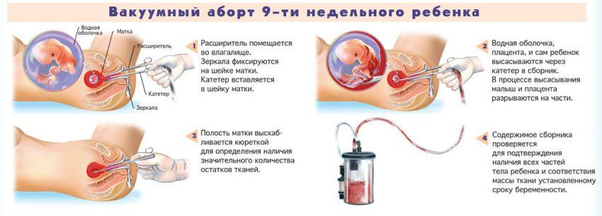Вызывающие Аборт фото