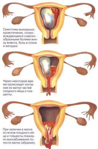 месячные после замершей беременности