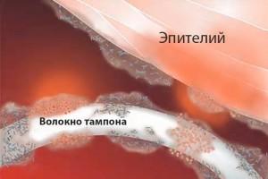 синдром токсического шока от тампонов