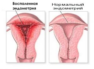 тампоны с димексидом при эндометрите