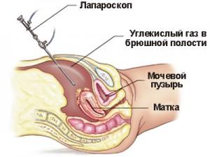 месячные после лапароскопии