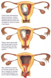 беременность и месячные