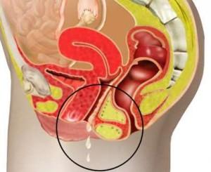 бактериальный вагиноз и месячные хлопьями
