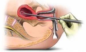месячные во время эндометрита лечение