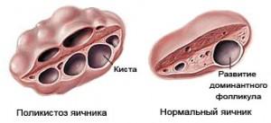влияние поликистоза яичников на месячные