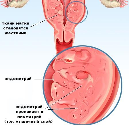 месячные при аденомиозе