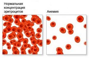 анемия при месячных