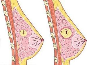 Увеличение фиброаденомы при месячных