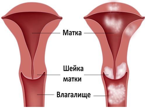 Опухоль матки