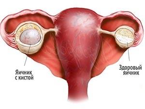 Увеличение яичника в результате кисты