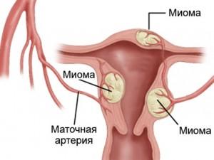 Влияние миомы на расширение цервикального канала