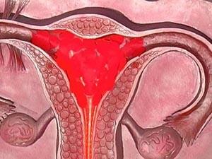 Обильная менструация после замирания беременности