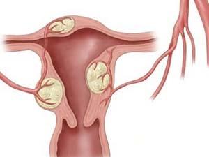 Причины аденомиоза матки при климаксе