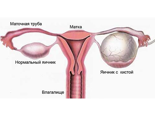 Причины образования кисты яичника при менопаузе