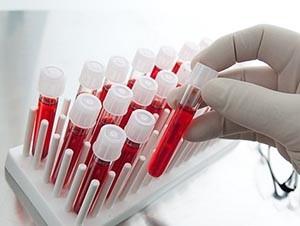 Сдача крови на гормоны для диагностики климакса