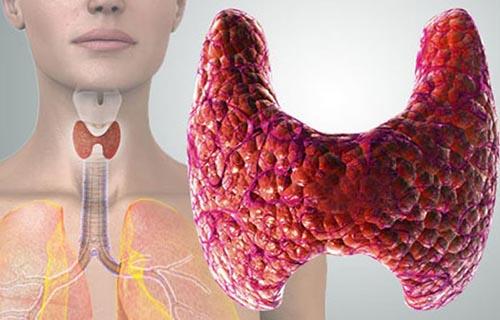 Гиперфункция щитовидной железы при климаксе