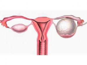 Что такое цистаденома яичника при климаксе у женщин