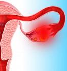Признаки цистаденомы яичника в менопаузе