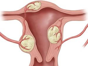 Опухоли матки в постменопаузе вызывают кровянистые выделения