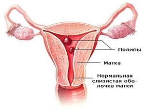 Полипы в постменопаузе - причина кровянистых выделений