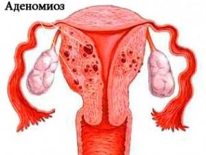 Причины развития аденомиоза