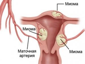 Что такое интрамуральная миома матки
