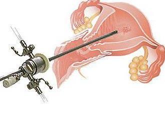 Гистерорезектоскопия полипа эндометрия