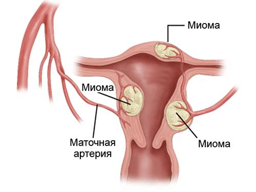 Кровянистые выделения при миоме матки после осмотра гинеколога