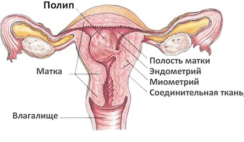 Что такое полип эндометрия