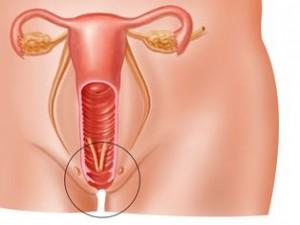 Почему развивается вульвит у женщин