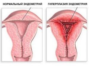 Почему возникает железисто кистозная гиперплазия эндометрия
