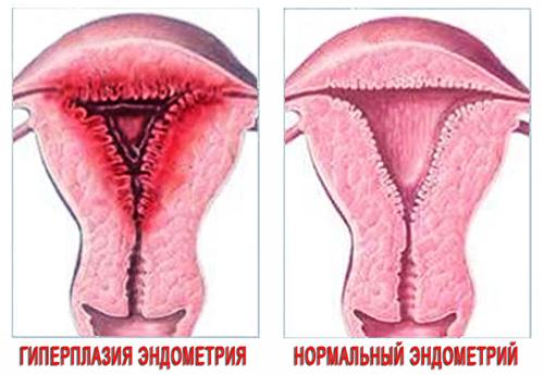 Особенности слизистой матки при гиперплазии эндометрия