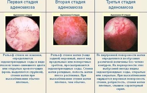 Стадии развития аденомиоза