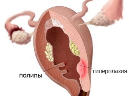 Железисто кистозная гиперплазия эндометрия