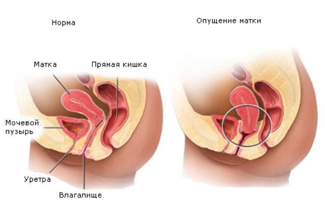 Причины опущения стенок матки у женщины
