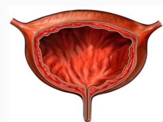 Эндометриоз мочевого пузыря: симптомы и лечение