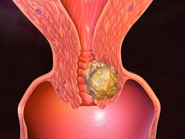 Кисты шейки матки: лечение народными средствами