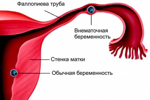 Внематочная беременность как причина боли в животе