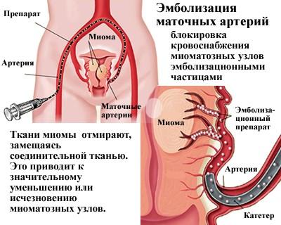 эмболизация артерий маточных труб