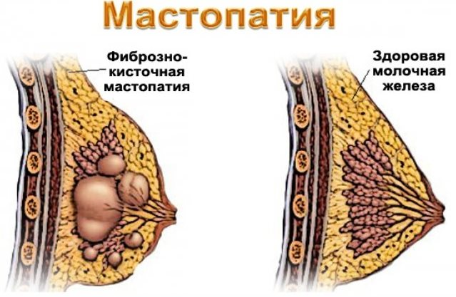 Что такое мастопатия
