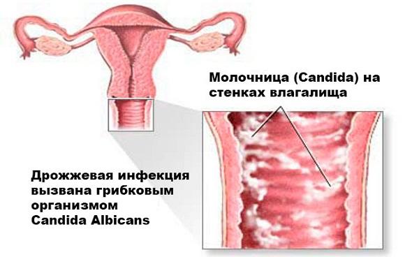 Эффективные свечи от молочницы: выбираем недорогие, но лучшие средства от вагинального кандидоза