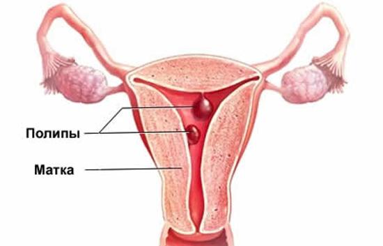 Полип эндометрия как причина обильных месячных