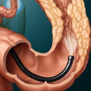 вид кишечника при колоноскопии