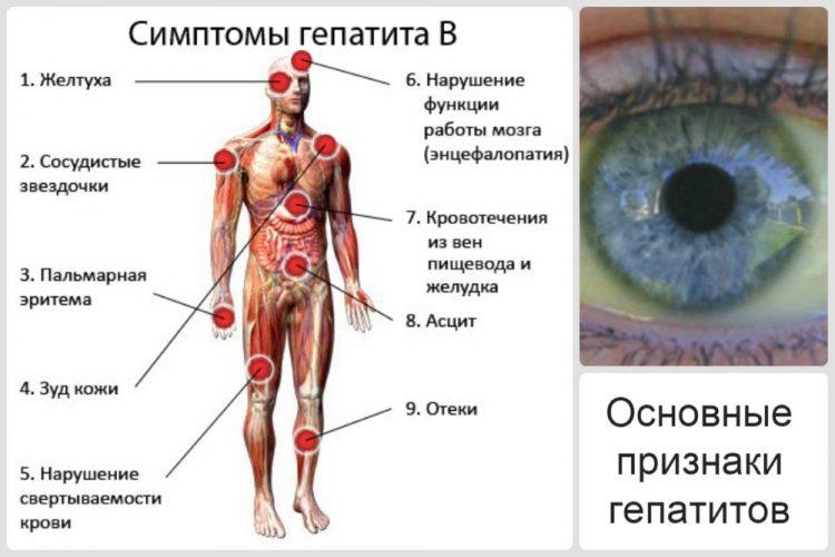 Основные симптомы гепатита Б