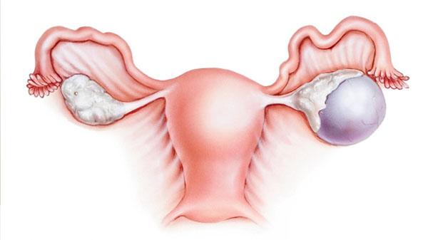 Задержка месячных при кисте яичника