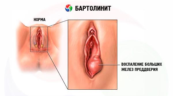 Бартолинит