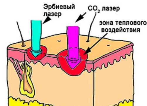 Воздействие эрбиевого и углекислотного лазера