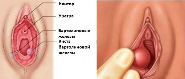 Киста бартолиновой железы
