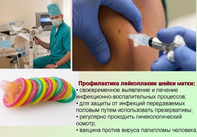 Профилактика лейкоплакии шейки матки
